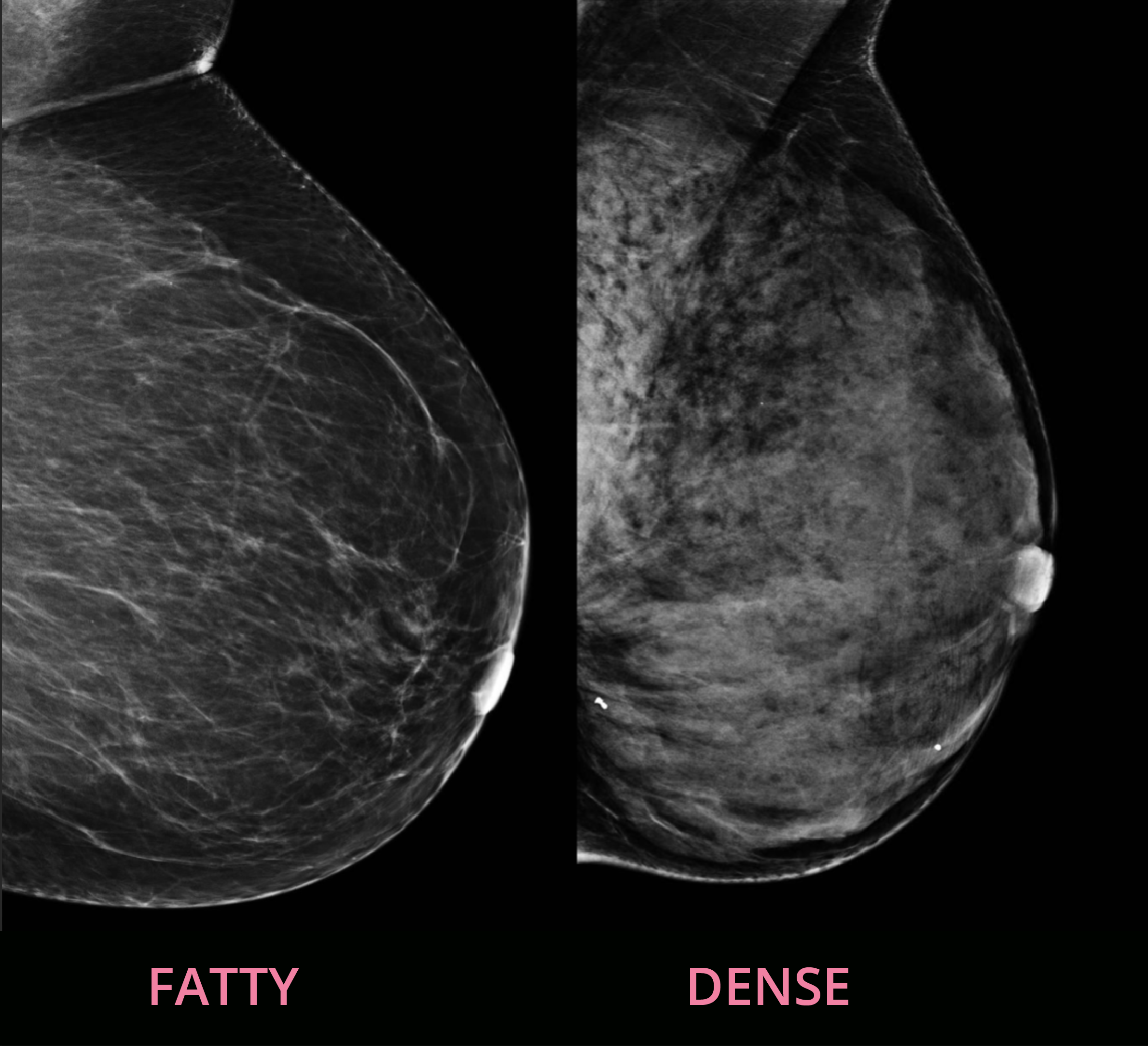Dense breasts verus fatty breasts